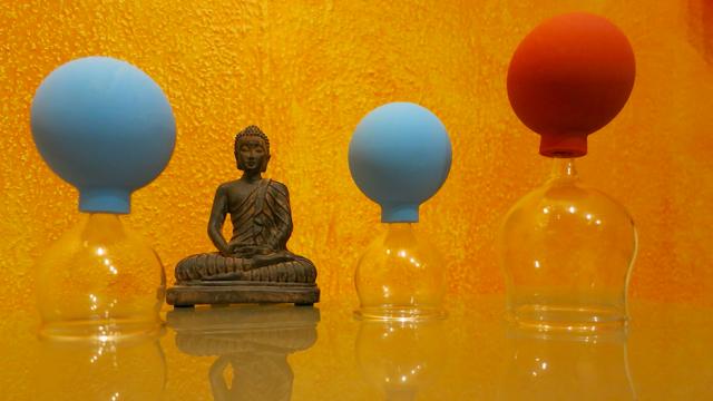 Gesund durch SCHRÖPFEN – das Schröpfen im Zuge der Akupunkt-Meridian-Massage